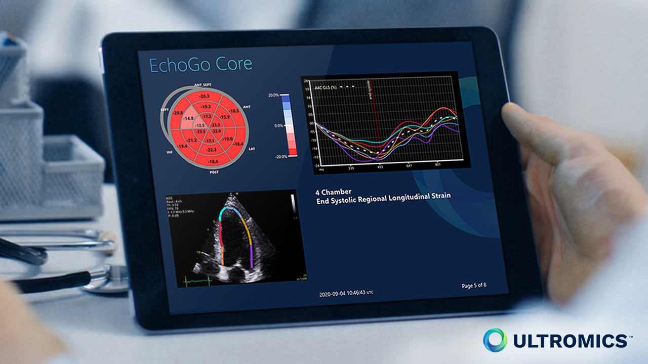 1280x720 EchoGo Core Strain on Tablet